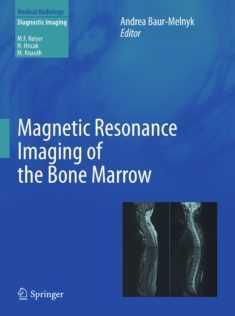 Magnetic-resonance-imaging-of-the-bone-marrow-2013-