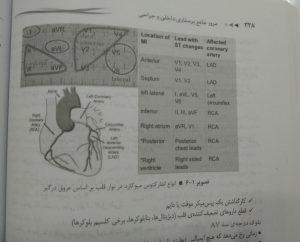 انواع انفارکتوس میوکارد در نوار قلب بر اساس عروق درگیر