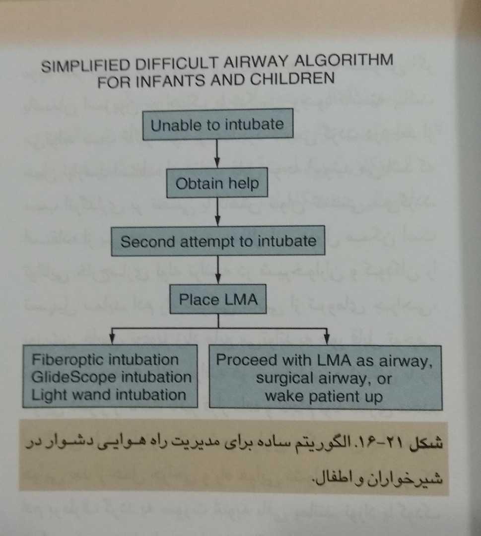 الگوریتم ساده برای مدیریت راه هوایی دشوار در شیرخواران و اطفال