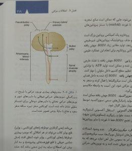 سندروم های بیماری نورون حرکتی با شروع در بزرگسالی