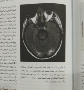 FLAIR MRI (نورولوژی بالینی امینف 2018)