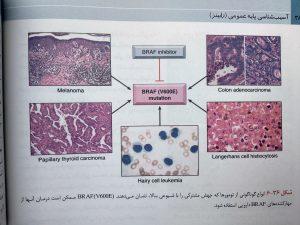 انواع تومور ها ( آسیب شناسی عمومی رابینز 2018 )