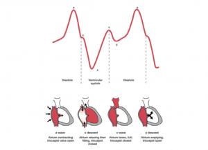 منحنی نبض ژوگولار ( افورتلس قلب )