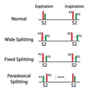 انواع S2 Splitting