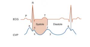 هم زمانی نبض با منحنی EKG (افورتلس قلب )