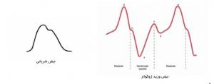 تفاوت نبض کاروتید و JVP ( افورتلس قلب )