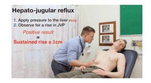 Hepato-jugular reflux ( افورتلس قلب )