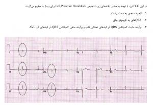 Left Posterior Hemiblock ( افورتلس قلب )
