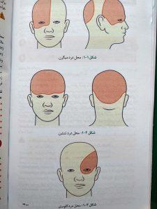 محل سردرد ( اوردر بیماری های داخلی )