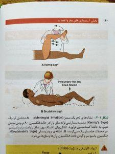نشانه های تحریک مننژ ( اوردر بیماری های داخلی )