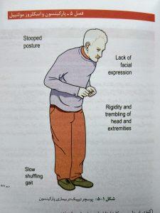پوستچر تیپیک بیماران پارکینسون