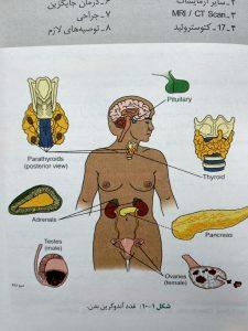 غدد اندوکراین بدن ( اوردر بیماری های داخلی )