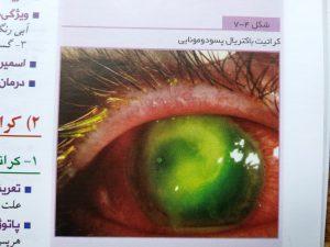 کراتیت باکتریال پسودومونایی ( abc چشم )