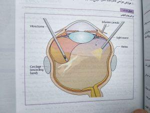 جراحی ویترکتومی ( abc چشم )