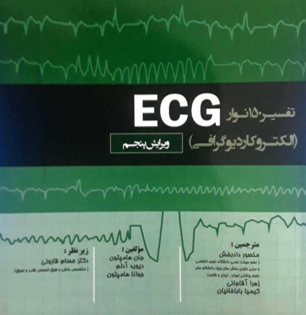 تفسیر 150 نوار ECG