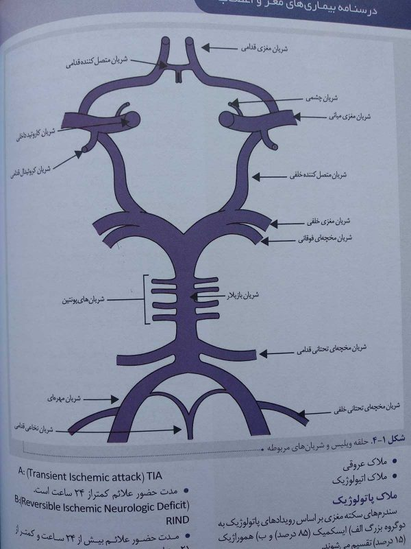 حلقه ویلیس ( درسنامه بیماری های مغز و اعصاب