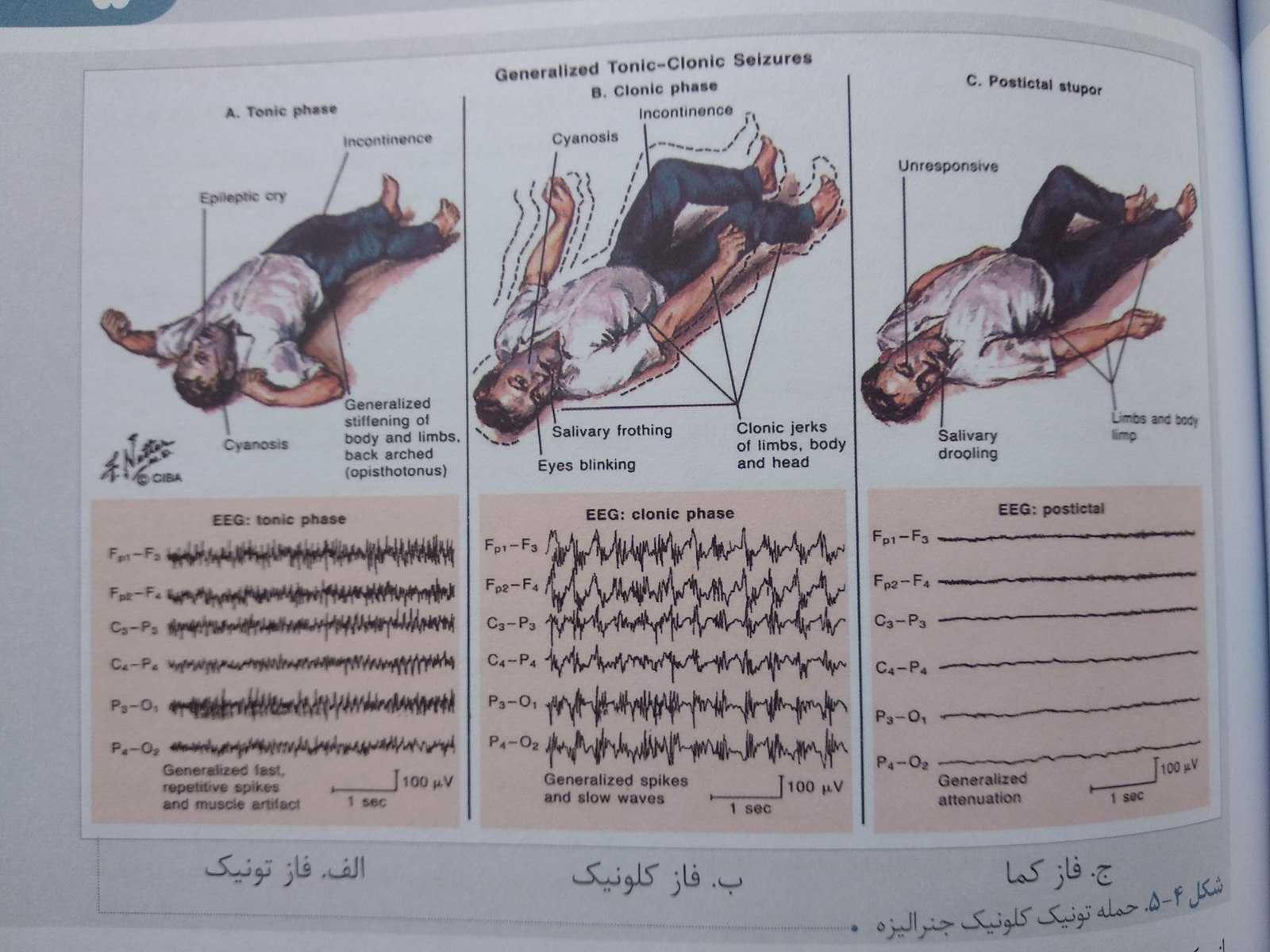 حمله تونیک کلونیک ( درسنامه بیماری های مغز و اعصاب