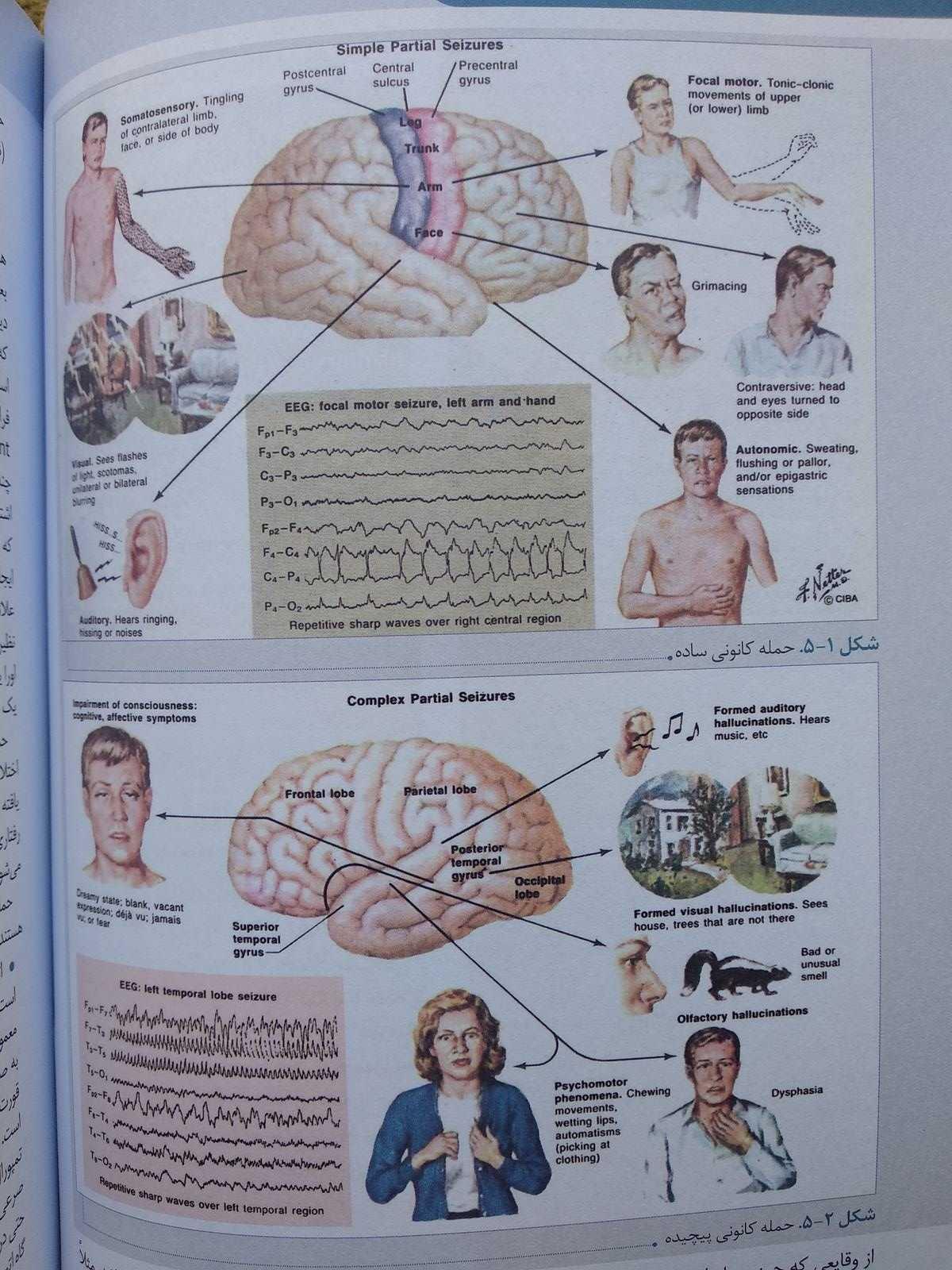حمله کانونی ( درسنامه بیماری های مغز و اعصاب