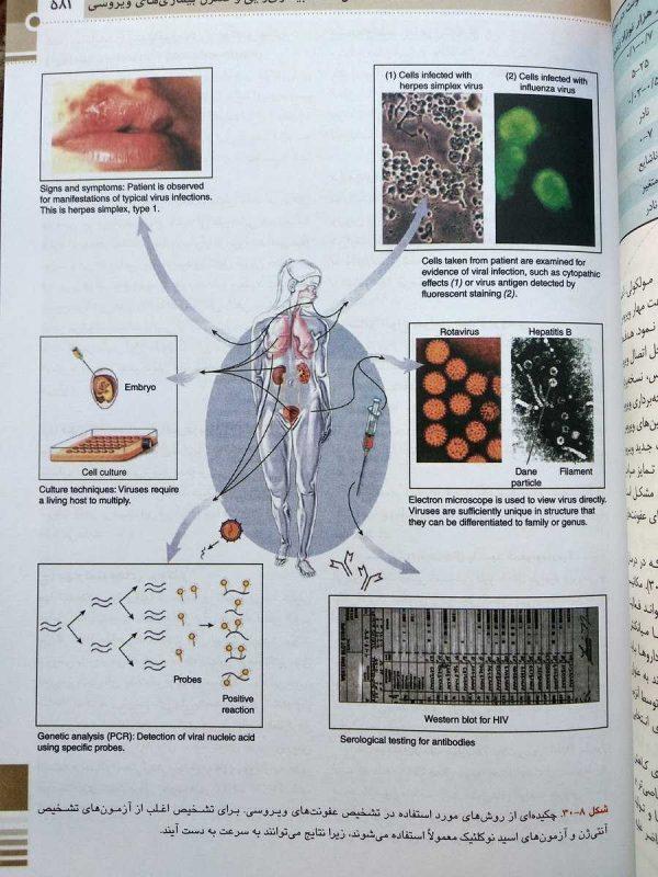 تشخیص عفونت های ویروسی