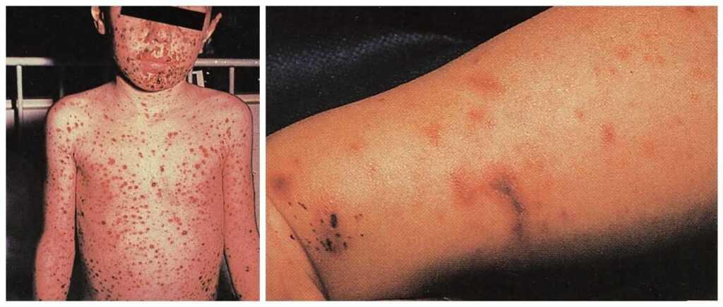 مننگوکوکسمی (بیماری مننگوکال)