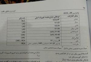لوکالیزاسیون MI در ECG