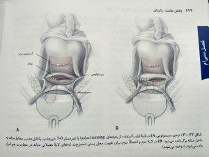 ترمیم سیستوتومی ( بارداری و زایمان ویلیامز جلد دوم )