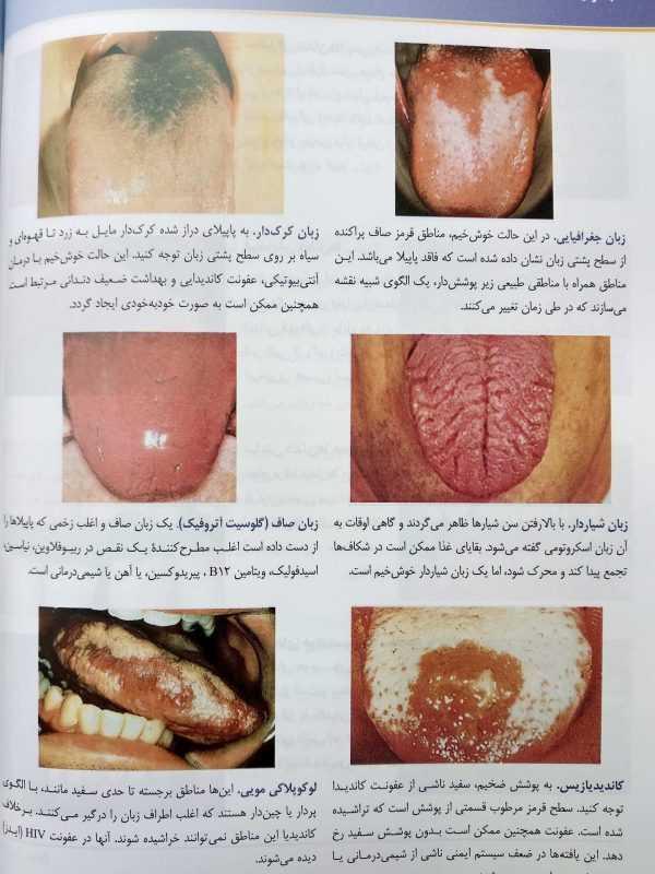 انواع اختلالات زبان ( معاینات بالینی باربارا بیتز 2017)