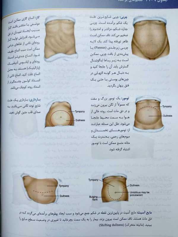 شکم های برجسته ( انواع اختلالات زبان ( معاینات بالینی باربارا بیتز 2017 )