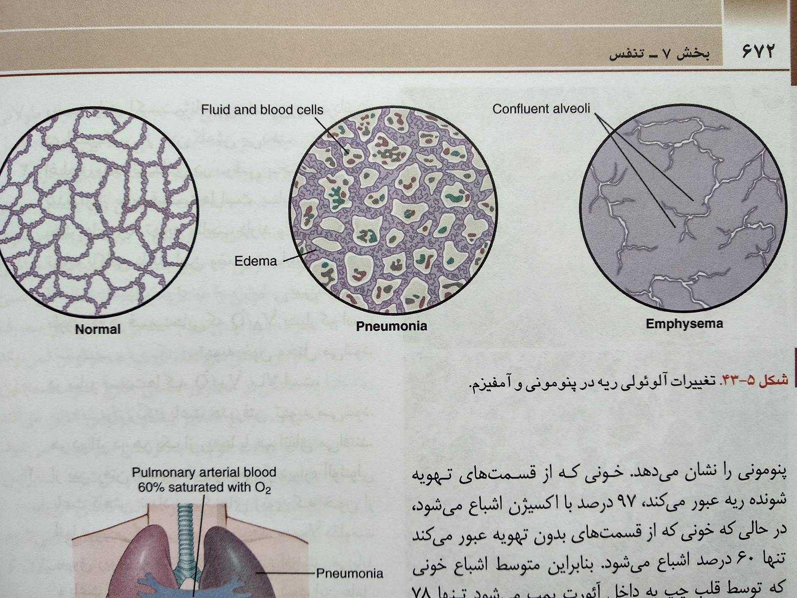تغییرات آلوئولی در آمفیزم و پنومونی