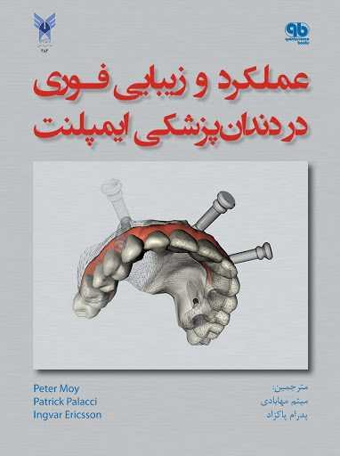 کتاب عملکرد و زیبایی فوری در دندانپزشکی ایمپلنت