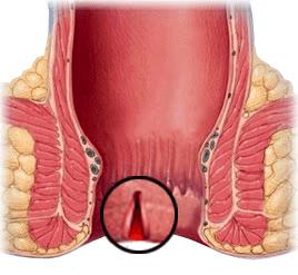 تشخیص فیستول و فیشر مقعدی