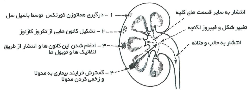 علائم بیماری سل (TB)
