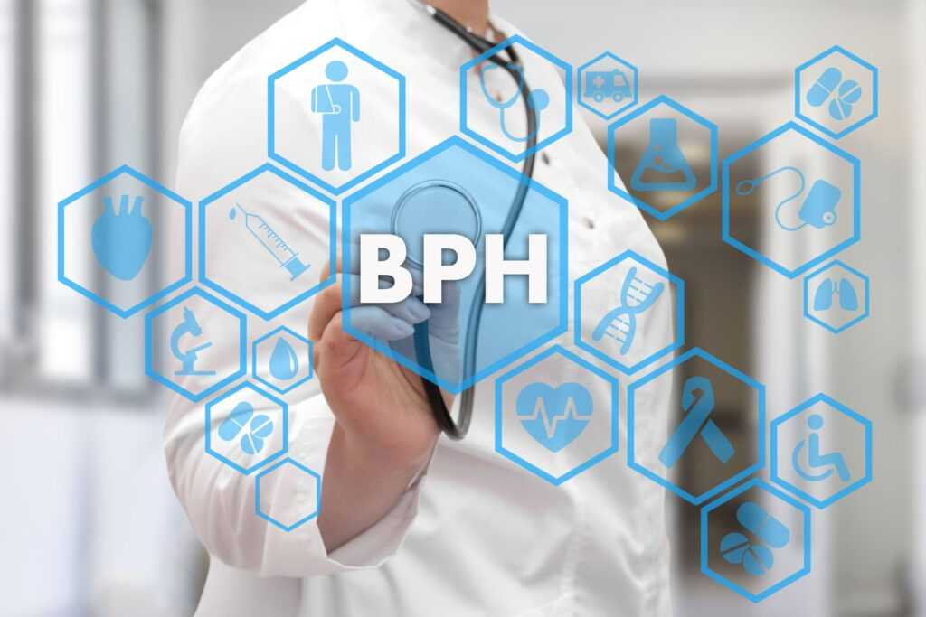 هایپرپلازی خوش خیم پروستات (BPH)