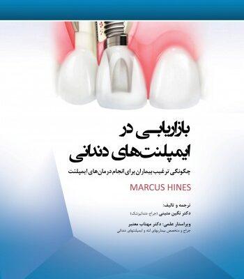 بازاریابی در ایمپلنت های دندانی