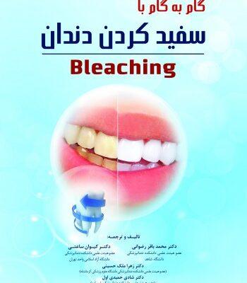 گام به گام با سفید کردن دندان